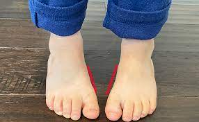 How To Tell If Your Child Is Pigeon Toed