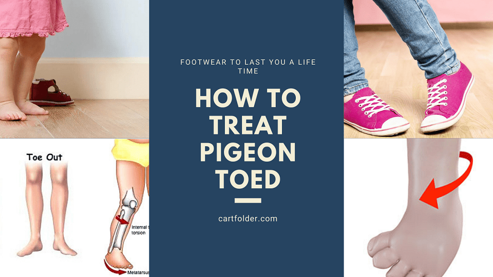 How To Treat Pigeon Toed